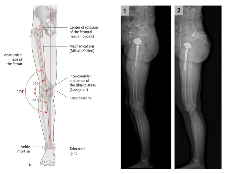 Detailed bone measurements