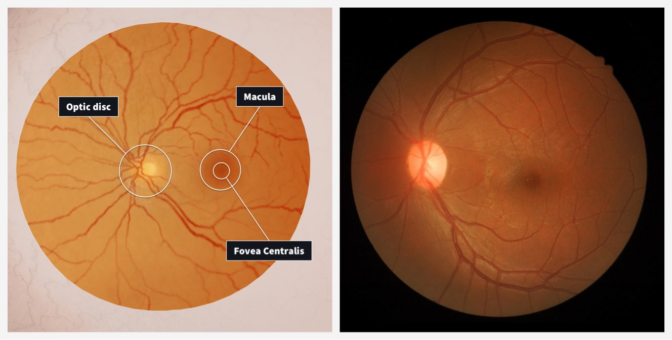 Retina correlation