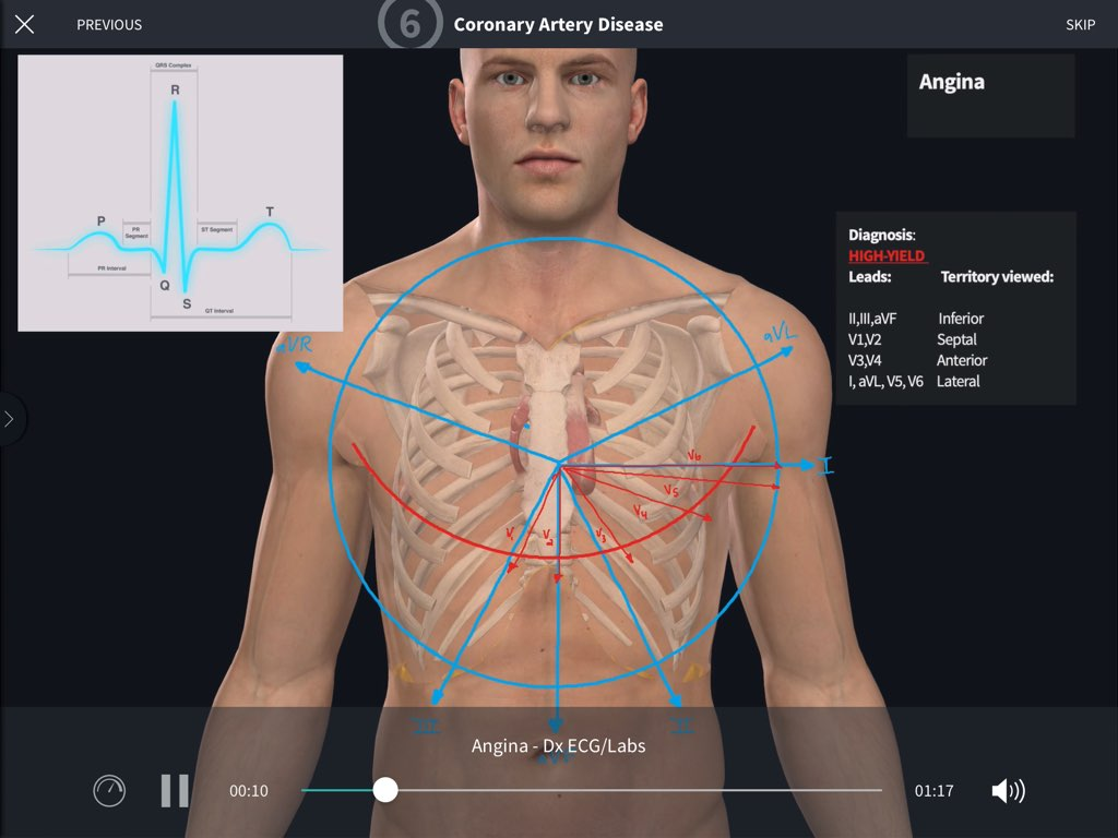 Cardiovascular Surgery: One of the Courses on the Complete Anatomy platform
